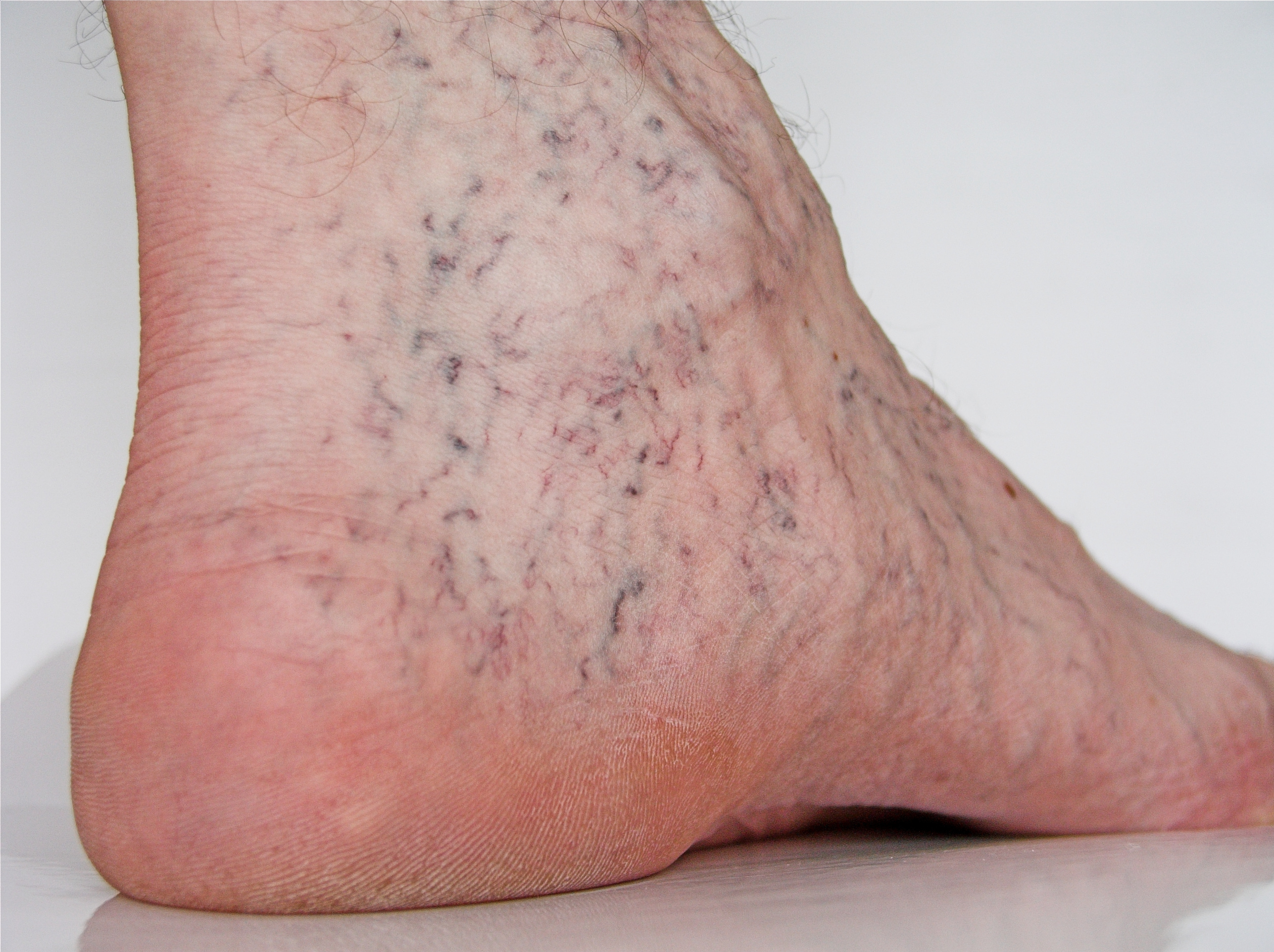 Spider Veins On A Foot The Vein Specialists Of Monterey